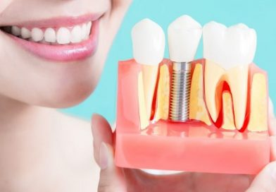 WHY THESE DENTAL IMPLANTS ARE GAINING SO MUCH POPULARITY
